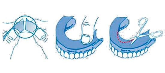 Como cortar y pegar almohadillas adhesivas en dentadura postiza de acrílico